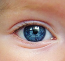 3D-Printed 'Eyes' Could Help Blind Children's Faces Grow Naturally